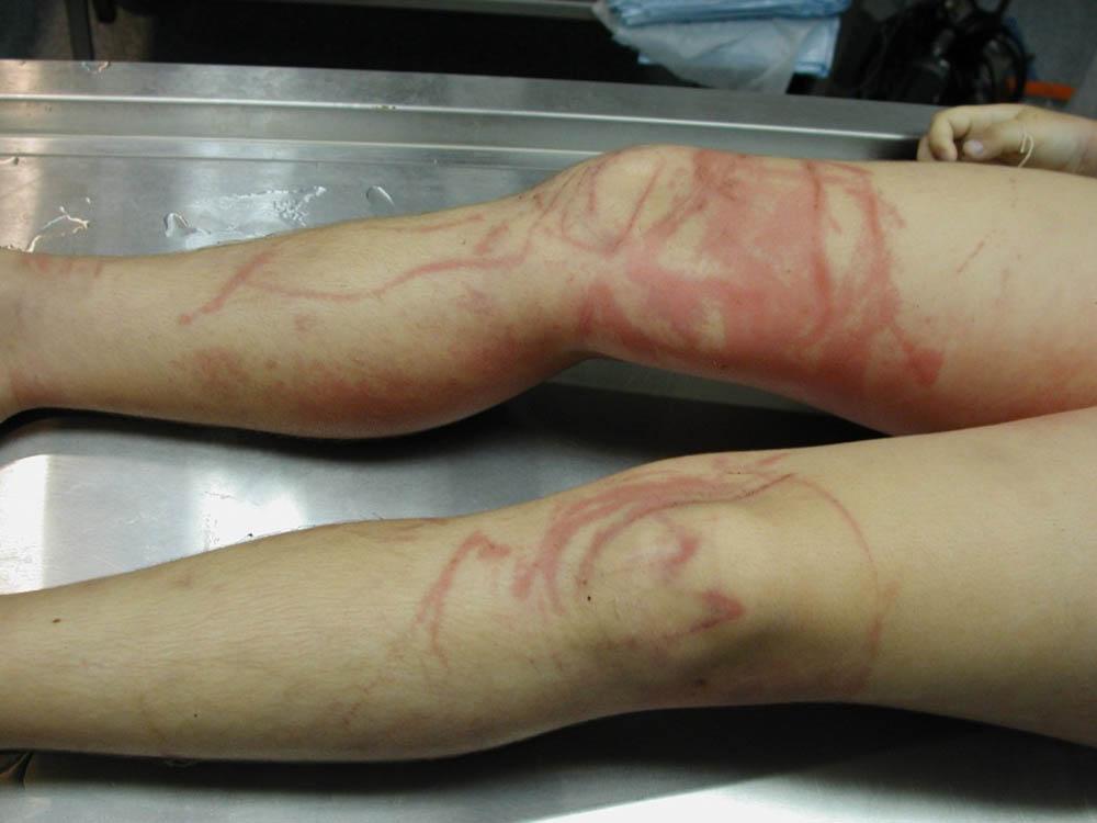 последствия укуса морской осы