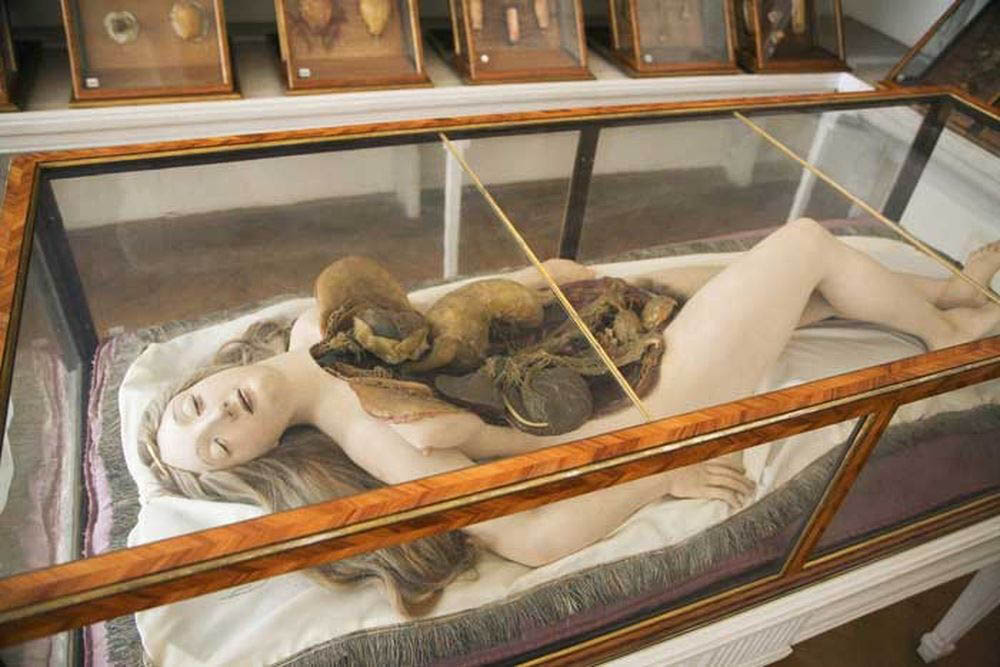 экспонаты музея патологоанатомии
